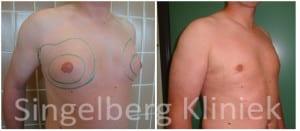 mannelijke borstverkleining watermerk
